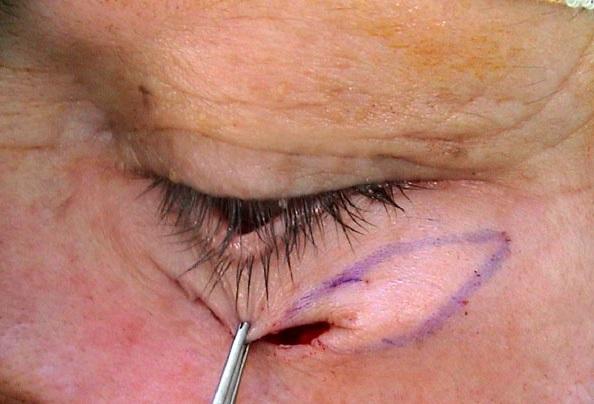 Ectropion cicatriciel
