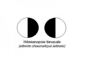 Hémianopsie binasale