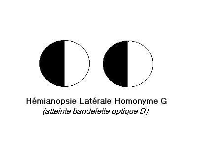 Hémianopsie latérale homonyme