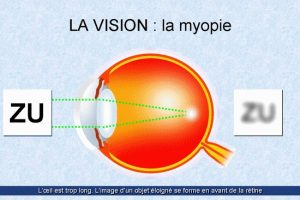 Étiologie de décollement de la rétine - Ophtalmologie