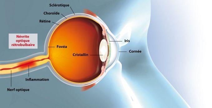 La névrite optique