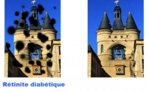 Vision avec une rétinite diabétique