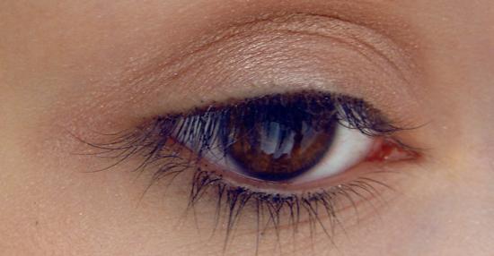 Le blépharospasme œil