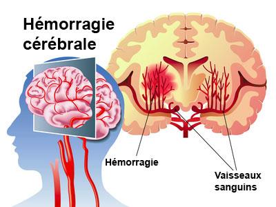 L'hypertension intra-crânienne
