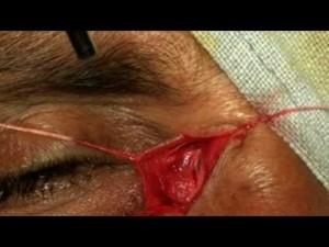 Opération dacryocysto-rhinostomie