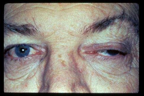 Paralysie oculaire