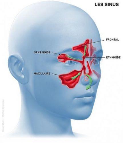 Le sinus maxillaire