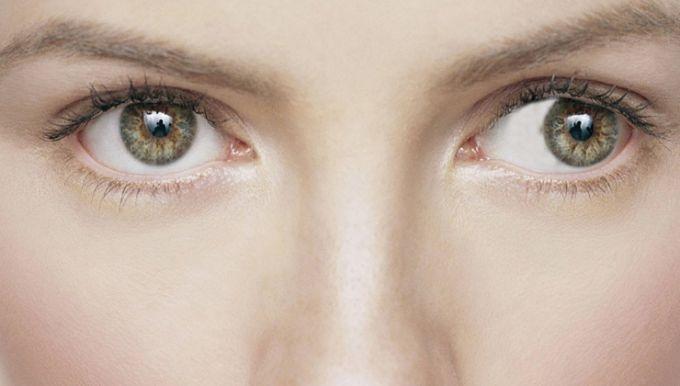 Un œil strabique