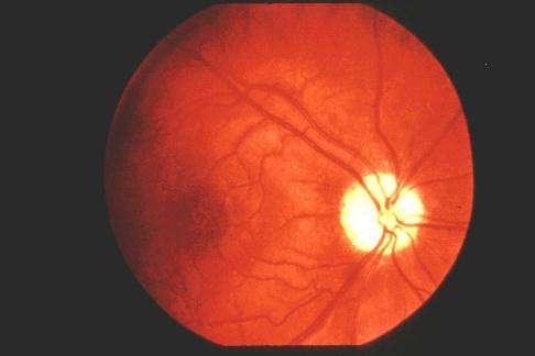 Le gargoïlisme et la maladie de Paget - Ophtalmologie