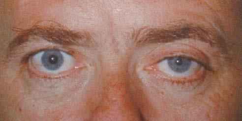 Syndrome de Claude Bernard-Horner