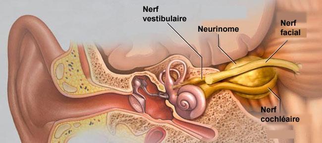 Neurinome