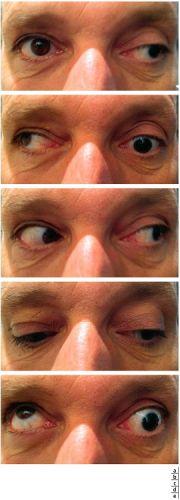 Paralysie du nerf oculomoteur