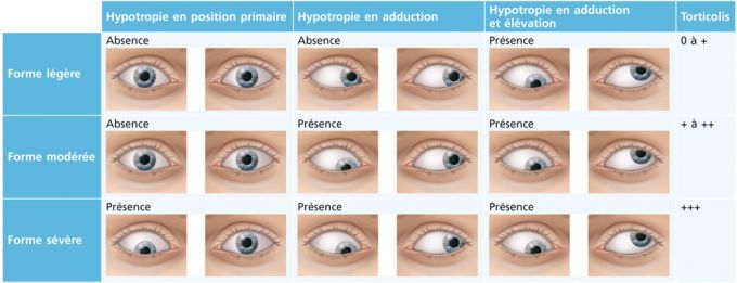 Paralysie moteur oculaire commun