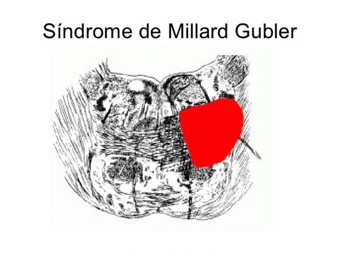 Syndrome de Millard Gubler
