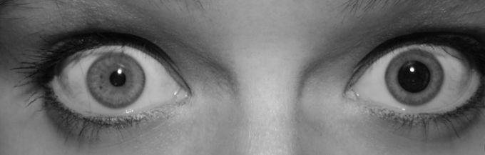 L'anisocorie ou inégalité de la pupille