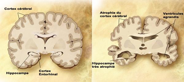Atrophie globale du cervelet