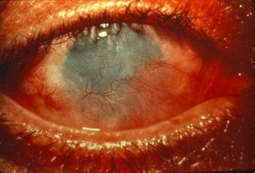 Les brûlures de l'œil