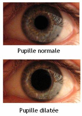 Dilatation de la pupille