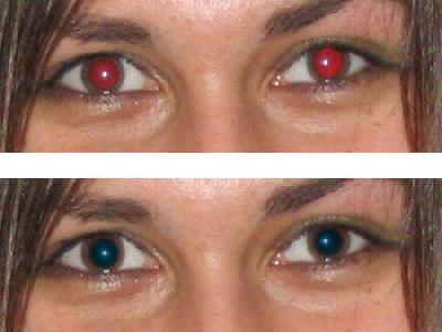 La forme de la pupille