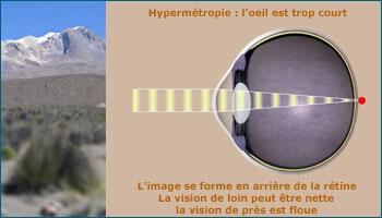 L'hypermétropie