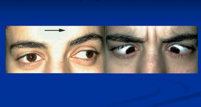 Ophtalmoplégie