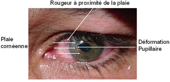 Volution des plaies du globe oculaire ophtalmologie - Couche du globe oculaire ...