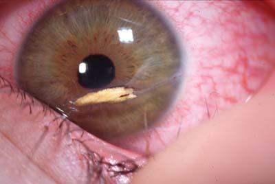 Les plaies contuses par agent vuln rant ophtalmologie for Interieur yeux