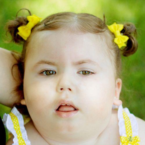 Encéphalopathies infantiles