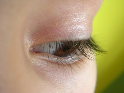 Migraine ophtalmoplégique