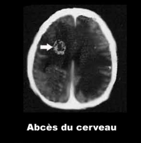L'abcès du cerveau