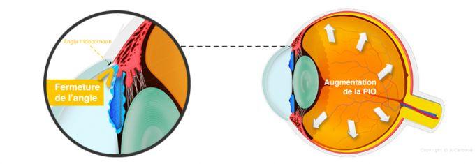 Le glaucome aigu