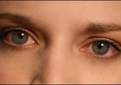 Une lésion oculaire