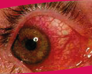 La lésion oculaire