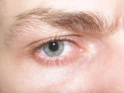 Les lésions oculaires