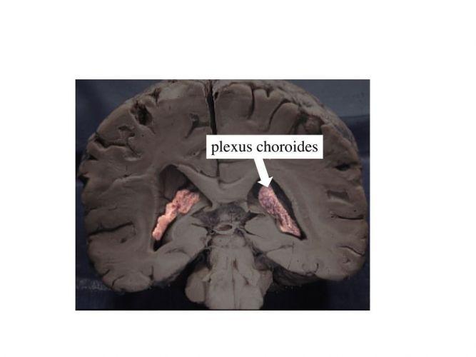 Plexus choroïdes