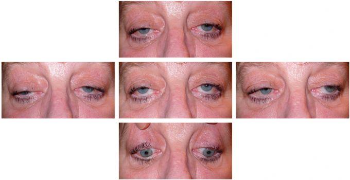 Les spasmes oculaires
