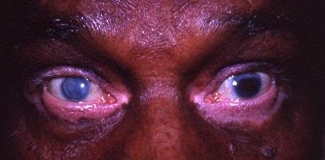 Le syndrome- de Vogt-koyanagi